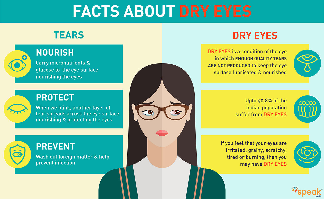 Speak Health Digital Creative Facts about dry eyes